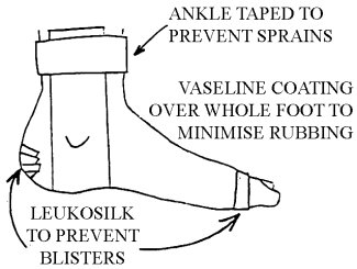 Example of ankle taping